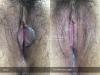 2-3-Labia-Minora-Clitoral-Hood-Reduction-Simple-Edge-Excision