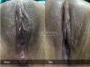 16-Labia-Minora-Clitoral-Hood-Reduction-Simple-Edge-Excision