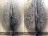47-Labia-Minora-Clitoral-Hood-Reduction-Simple-Edge-Excision