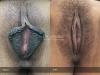 36-Labia-Minora-Clitoral-Hood-Reduction-Simple-Edge-Excision
