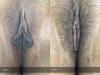 37-Labia-Minora-Clitoral-Hood-Reduction-Simple-Edge-Excision