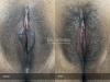 43-Labia-Minora-Clitoral-Hood-Reduction-Simple-Edge-Excision