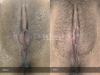 45-Labia-Minora-Clitoral-Hood-Reduction-Simple-Edge-Excision