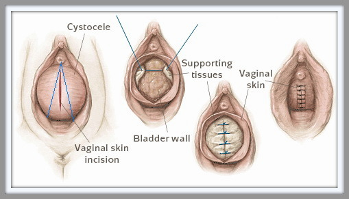 Coined 3 vagina shapes short distance